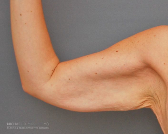 Before arm body contouring