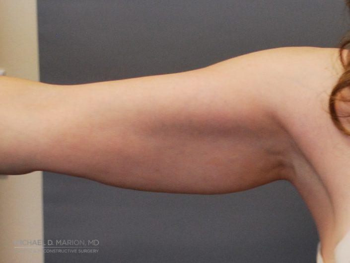 Arm liposuction utah county