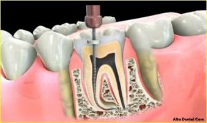 rootcanal3