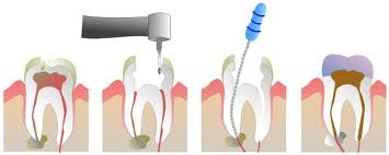root-canal-42