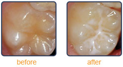 Sealants Before & After