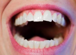 A Cosmetic Dentist in Atlanta Can Help Correct Your Misaligned Teeth