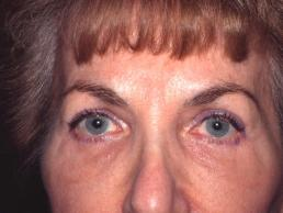 blepharoplasty-eyelid-surgery--case11-after1-09-22-2014-07-45-37