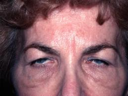 blepharoplasty-eyelid-surgery--case11-before1-09-22-2014-07-45-37