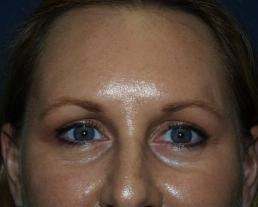 brow-liftforehead-lift--case5-after1-09-22-2014-07-56-59