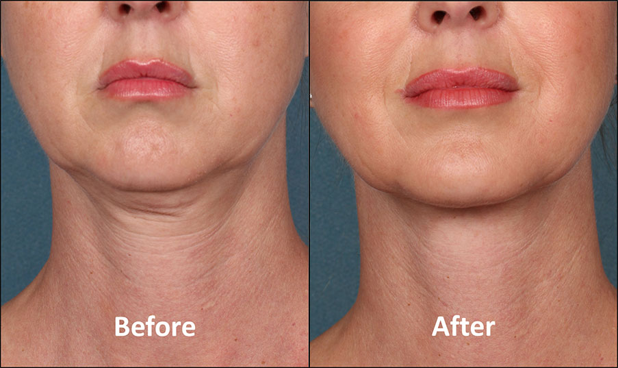 KYBELLA Patient - Before & After - Front View