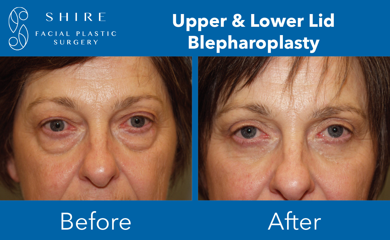 Blepharoplasty-Before-After-Group-1