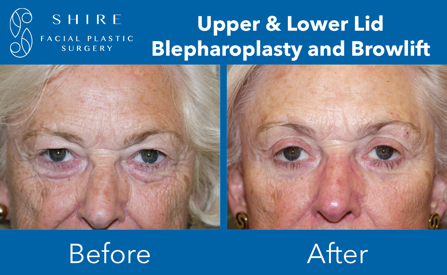 Blepharoplasty-Before-After-Group-10