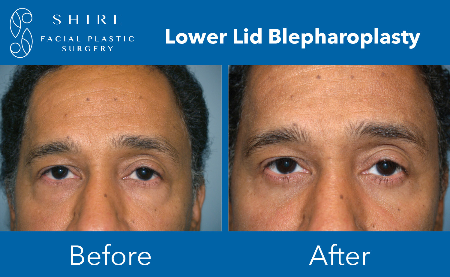Blepharoplasty-Before-After-Group-11