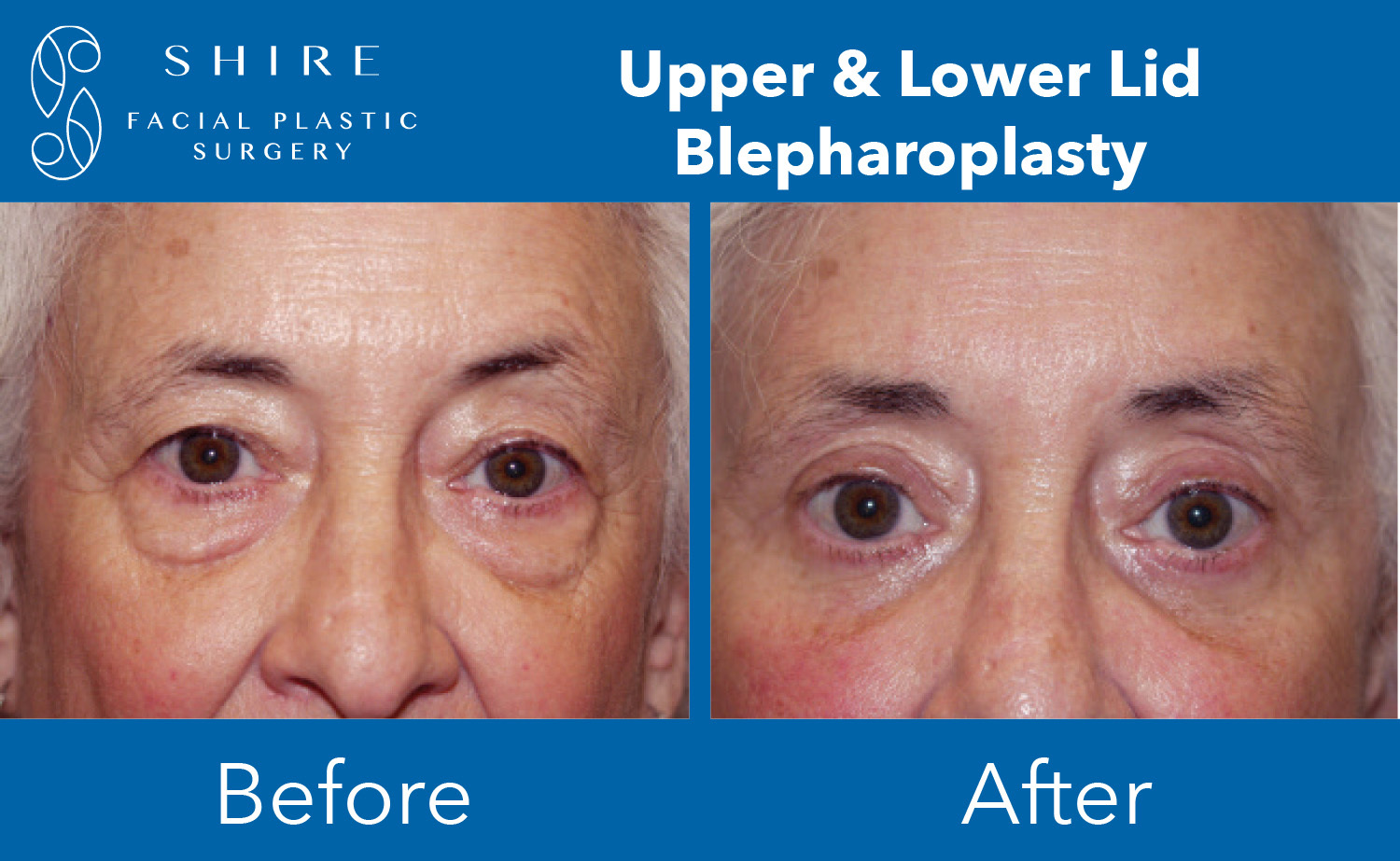 Blepharoplasty-Before-After-Group-12
