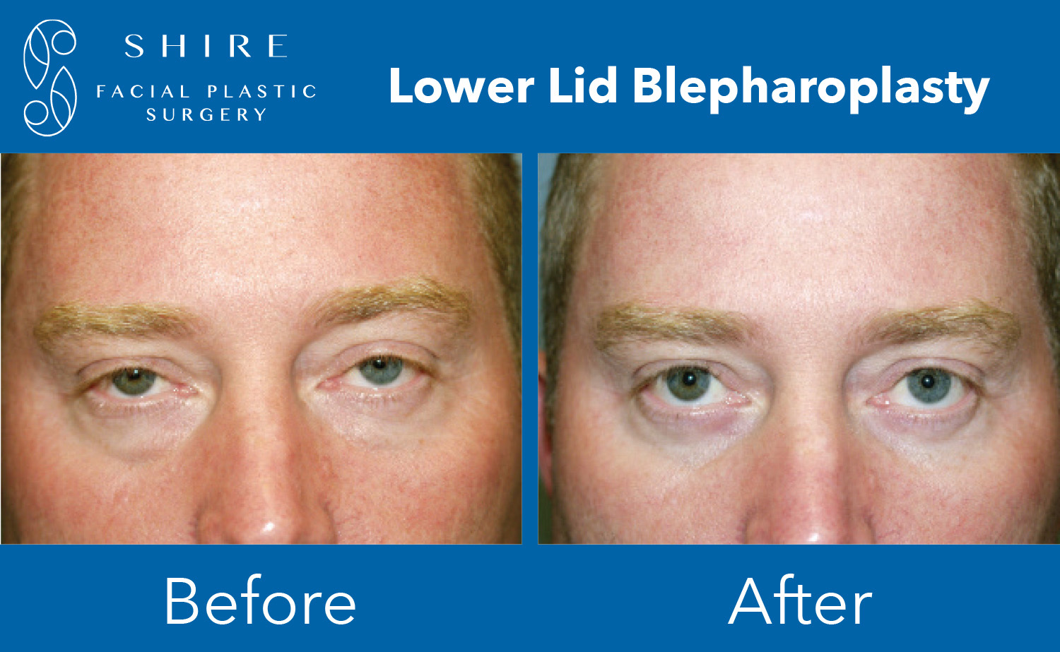 Blepharoplasty-Before-After-Group-13