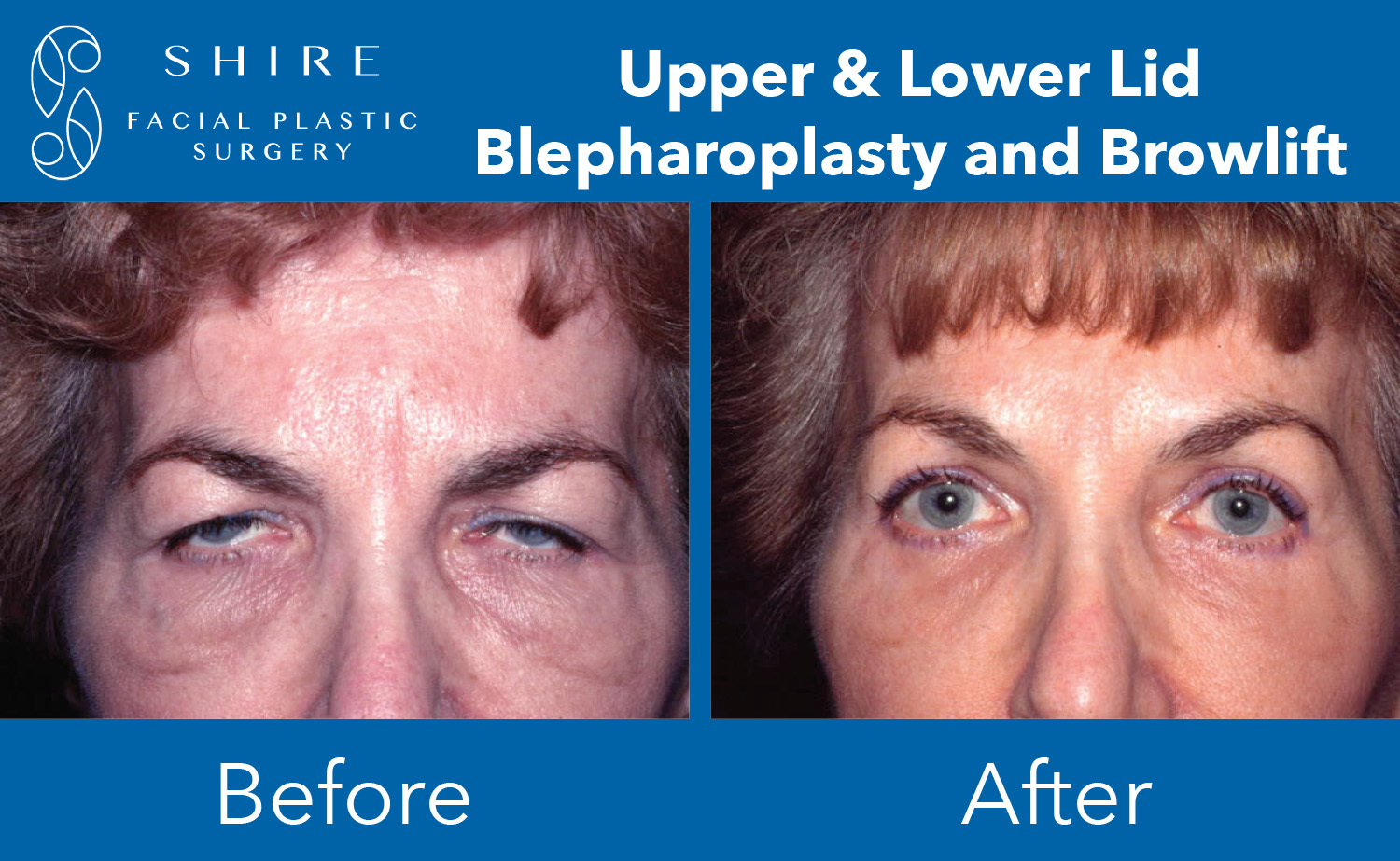Blepharoplasty-Before-After-Group-14