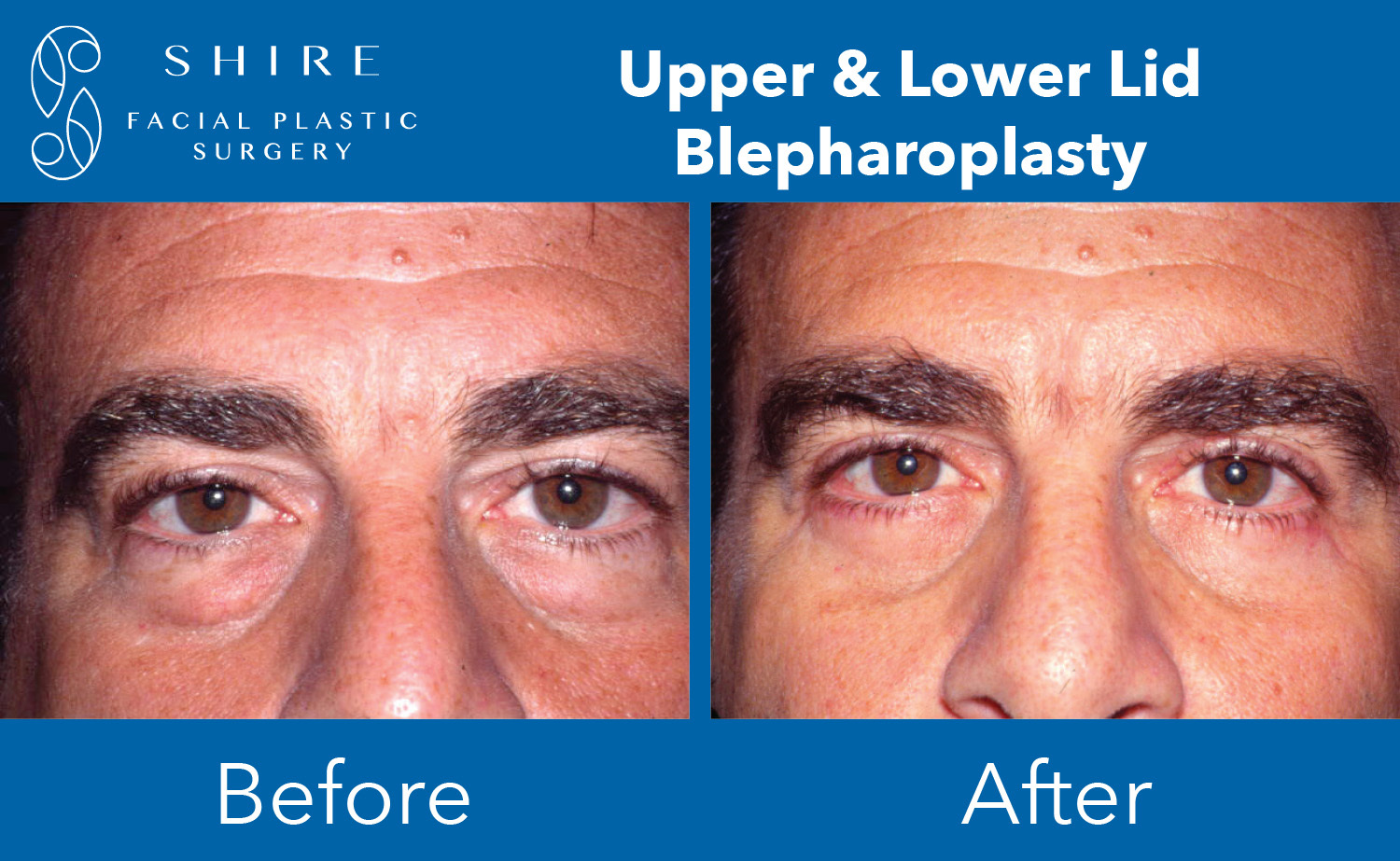 Blepharoplasty-Before-After-Group-15