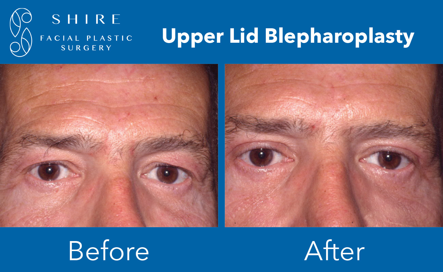 Blepharoplasty-Before-After-Group-16