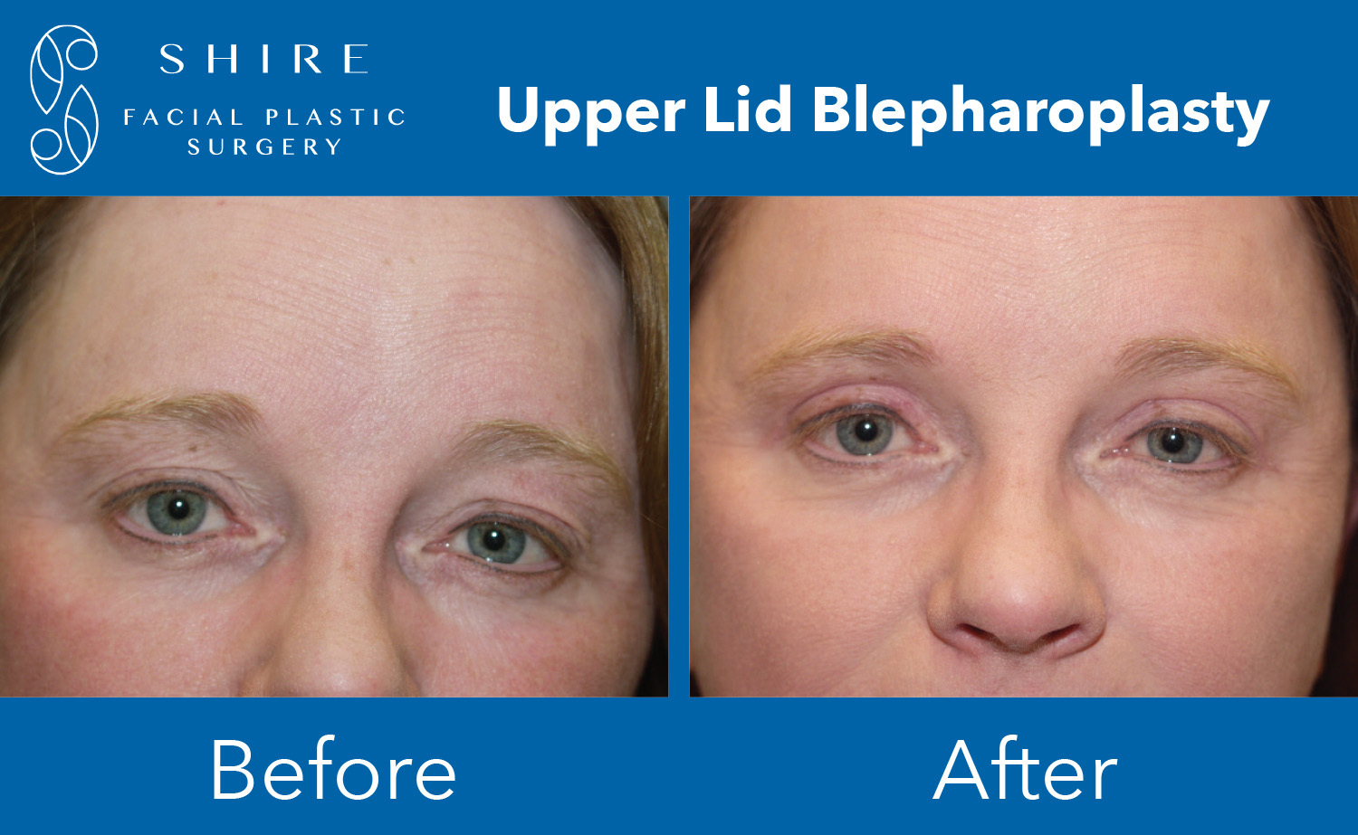 Blepharoplasty-Before-After-Group-2