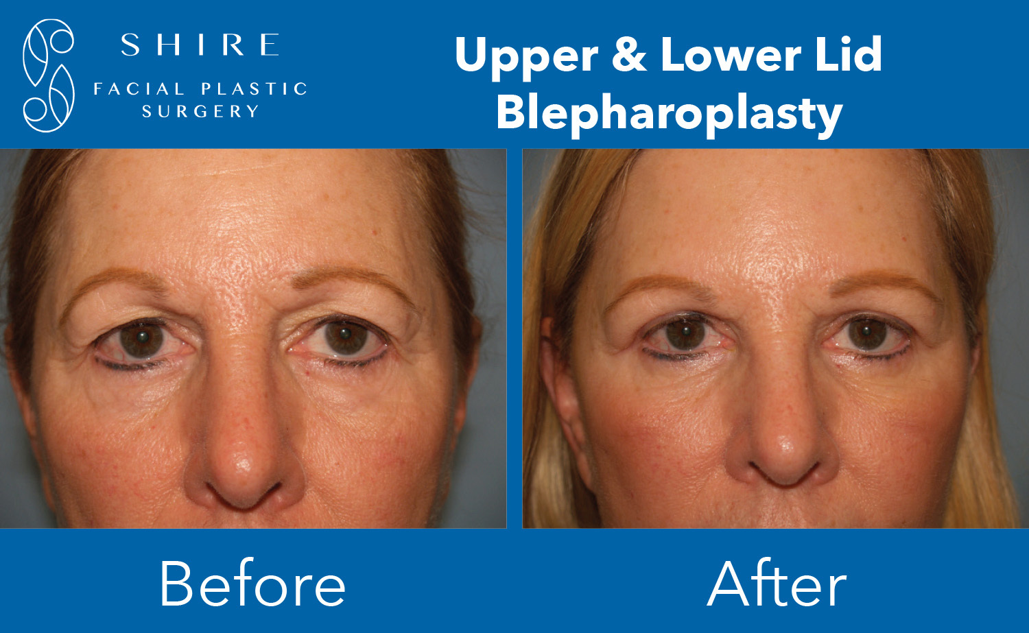 Blepharoplasty-Before-After-Group-3