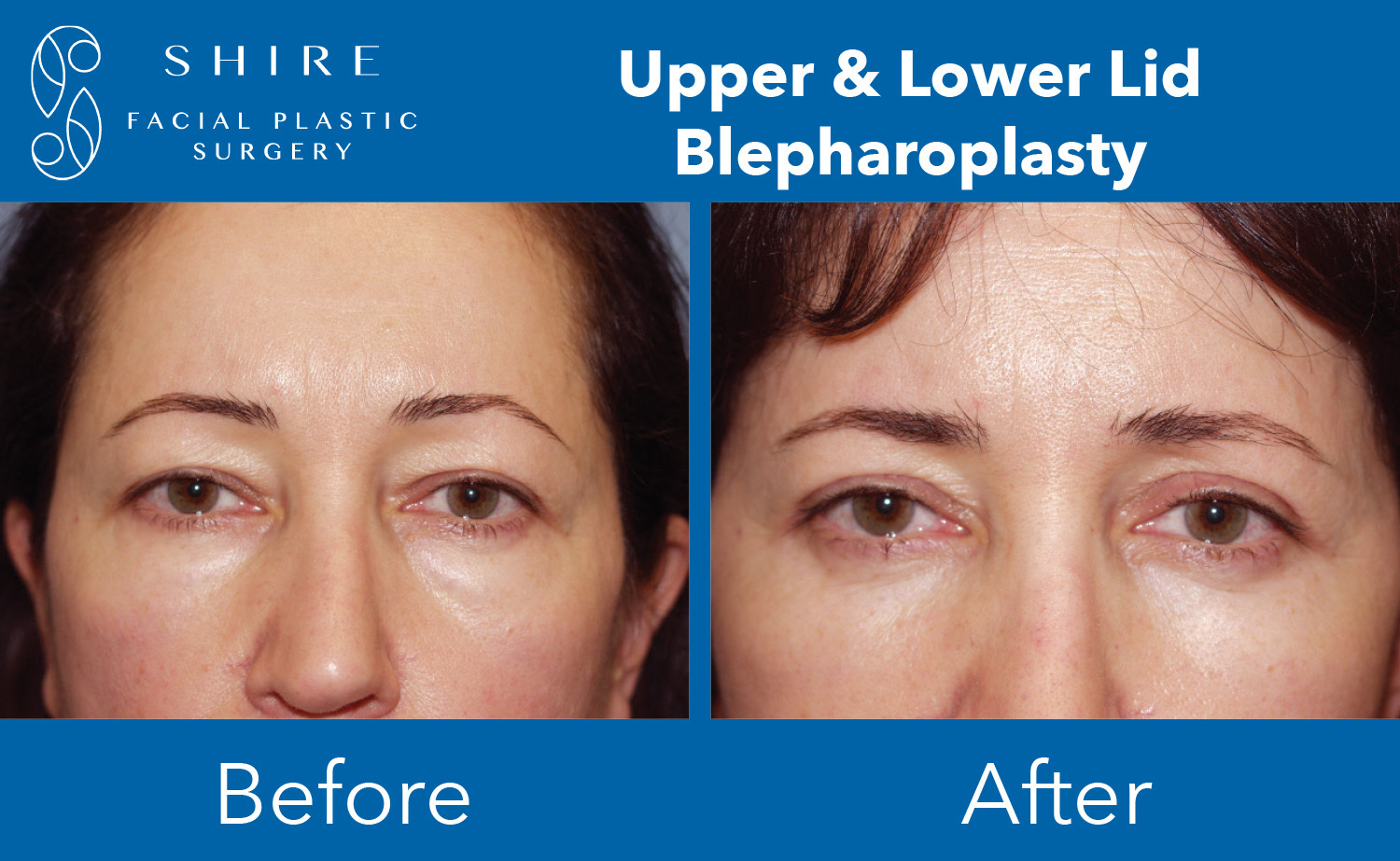 Blepharoplasty-Before-After-Group-4