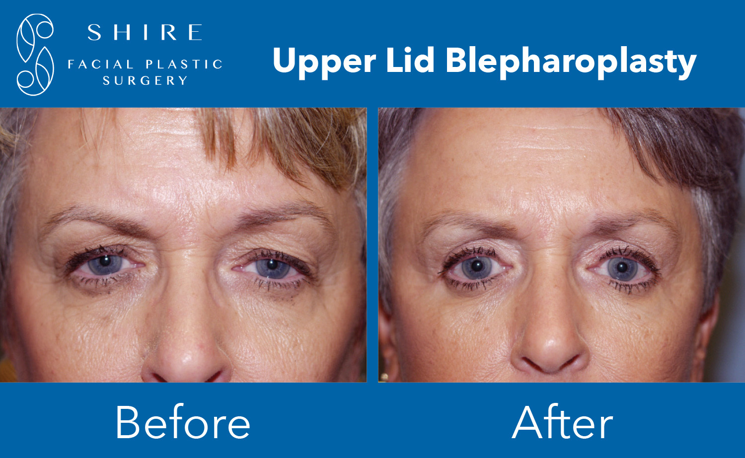 Blepharoplasty-Before-After-Group-5