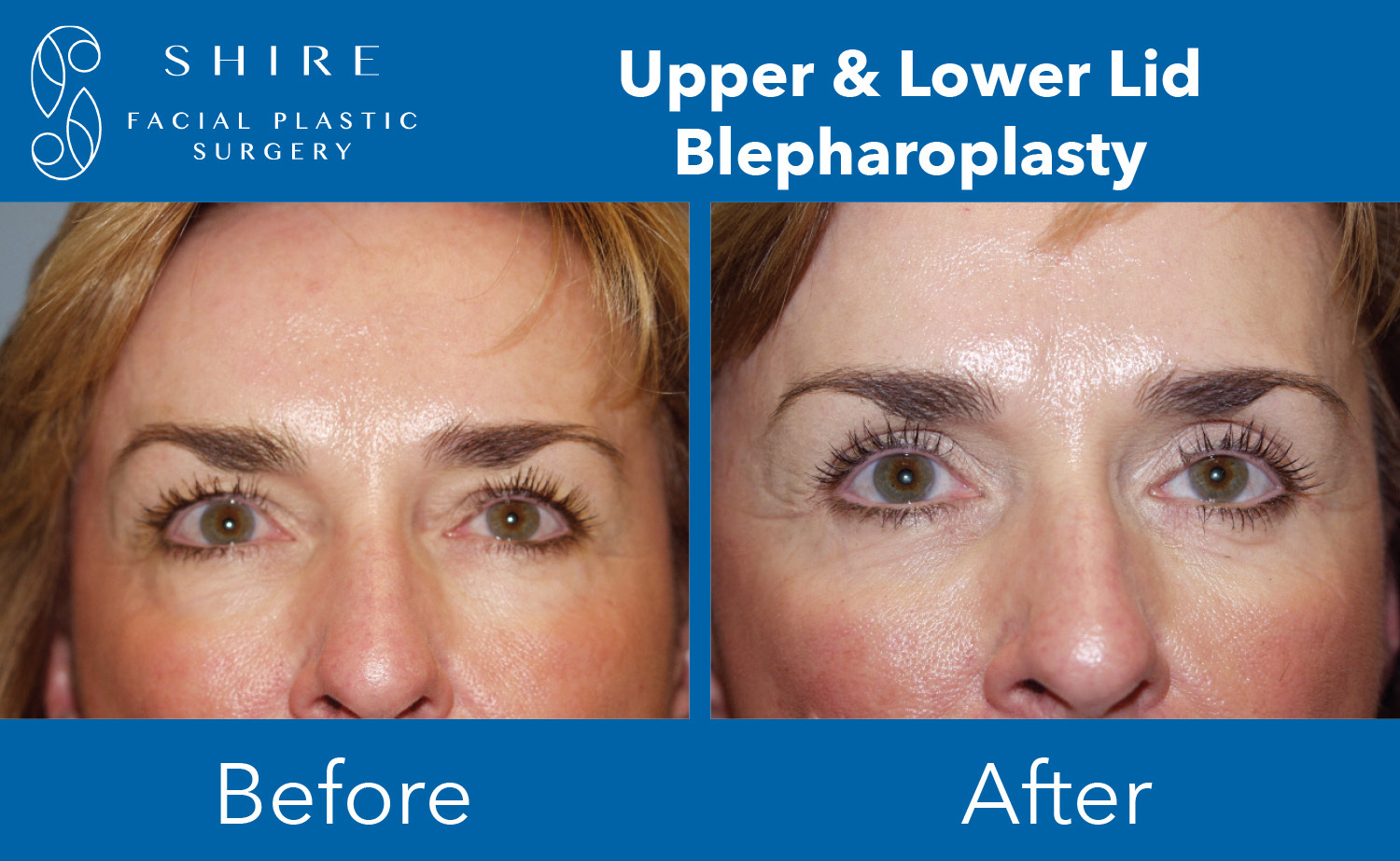 Blepharoplasty-Before-After-Group-6