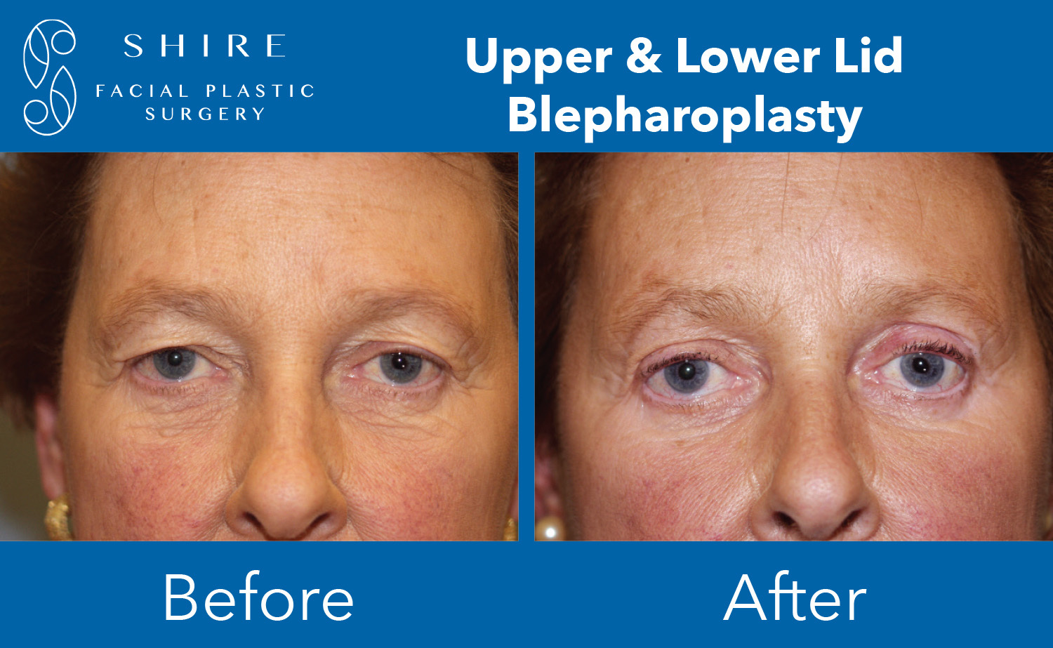 Blepharoplasty-Before-After-Group-8
