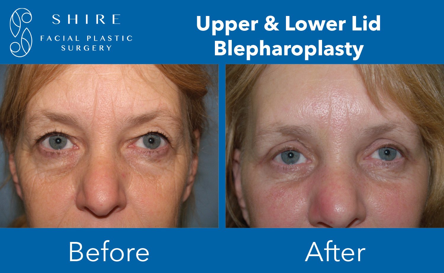 Blepharoplasty-Before-After-Group-9