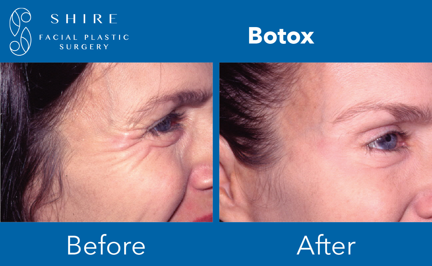 Botox-Before-After-Group-1