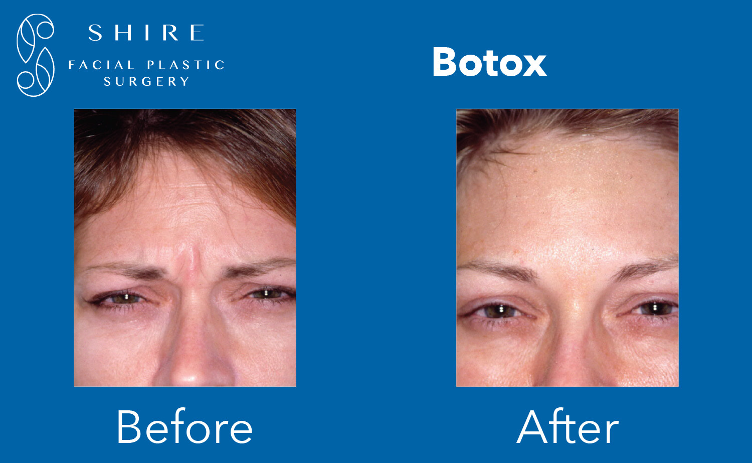 Botox-Before-After-Group-2