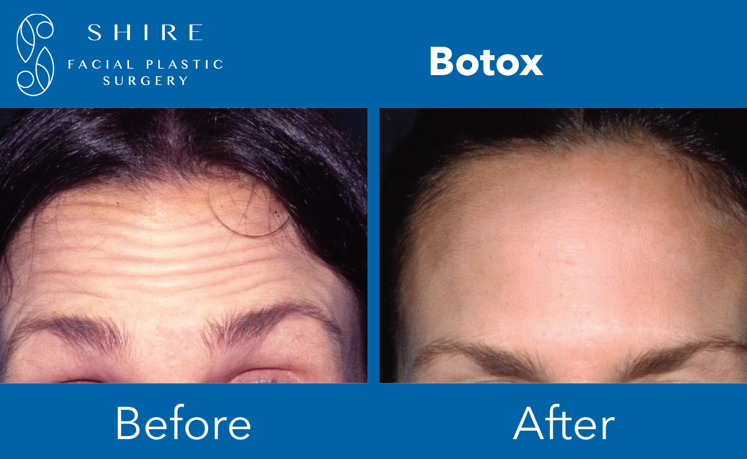 Botox-Before-After-Group-3
