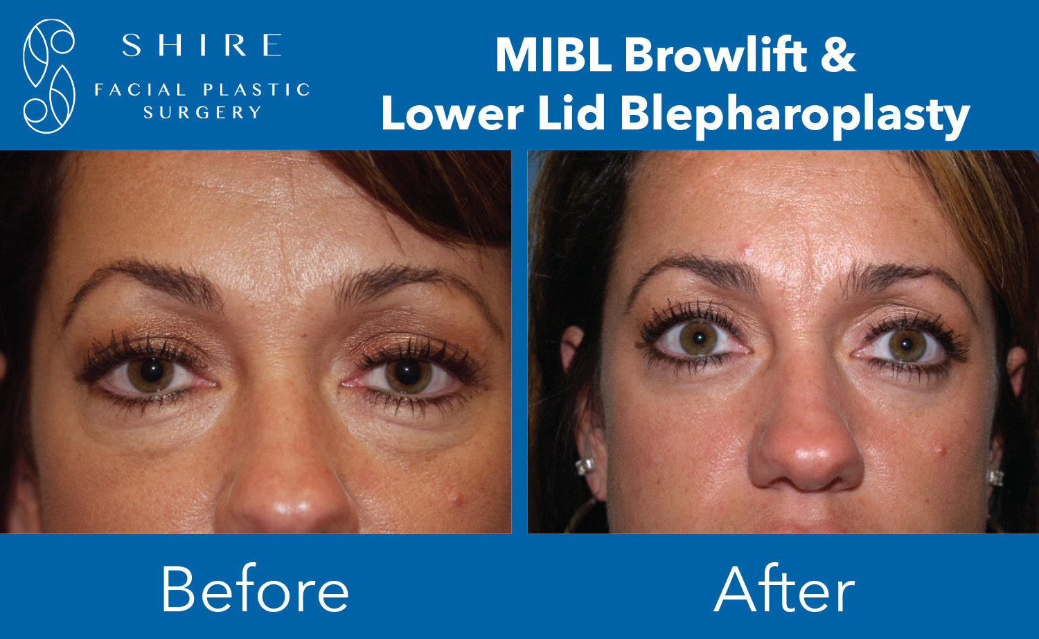 Browlift-Before-After-Group-1