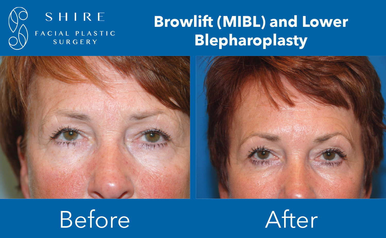Browlift-Before-After-Group-10
