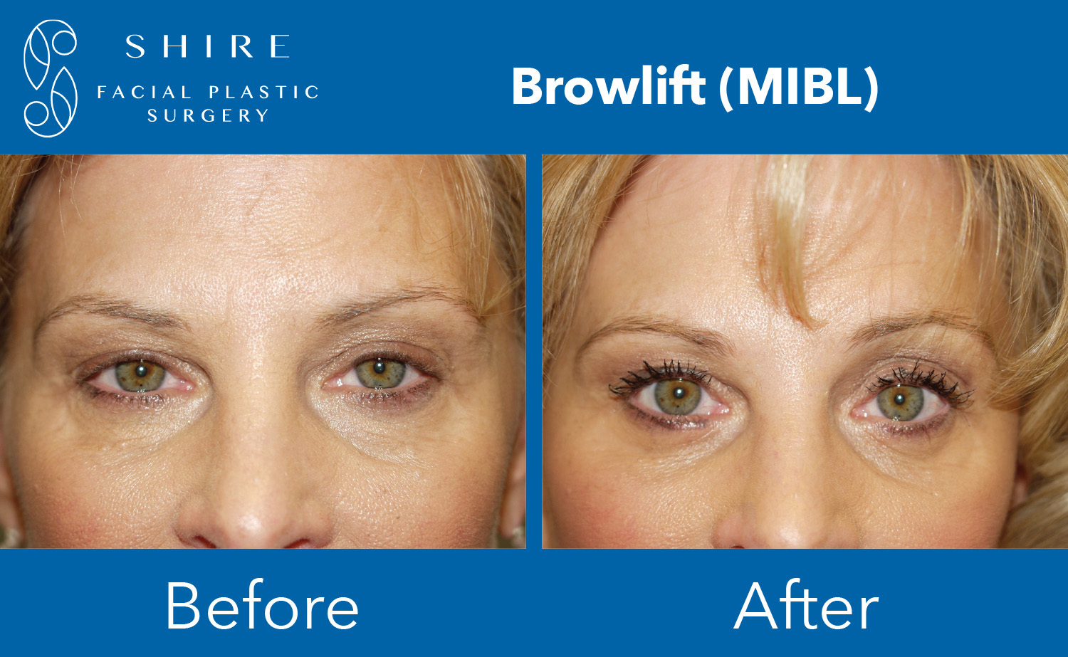 Browlift-Before-After-Group-11