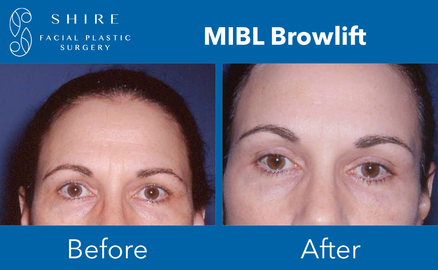 Browlift-Before-After-Group-3