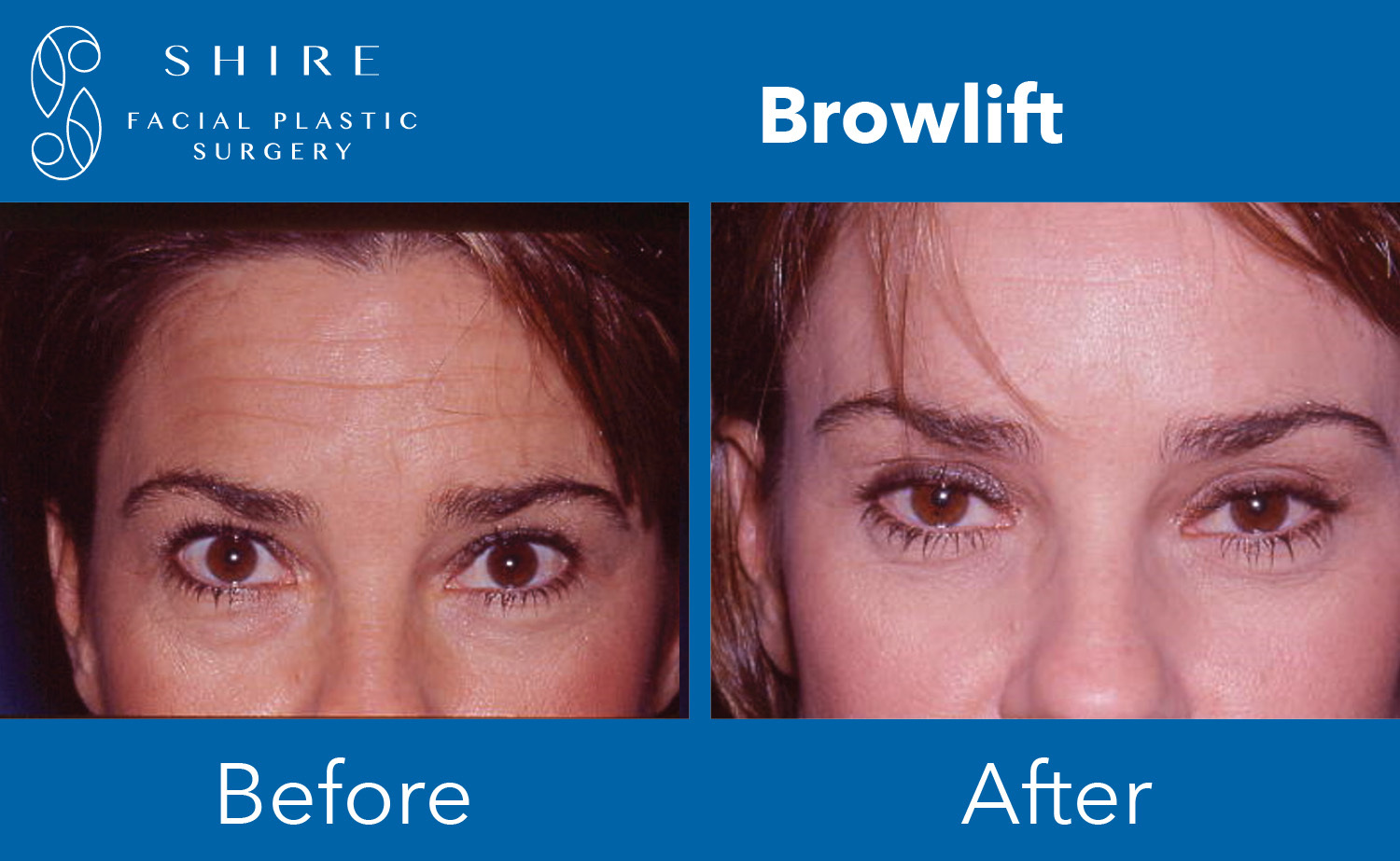 Browlift-Before-After-Group-4