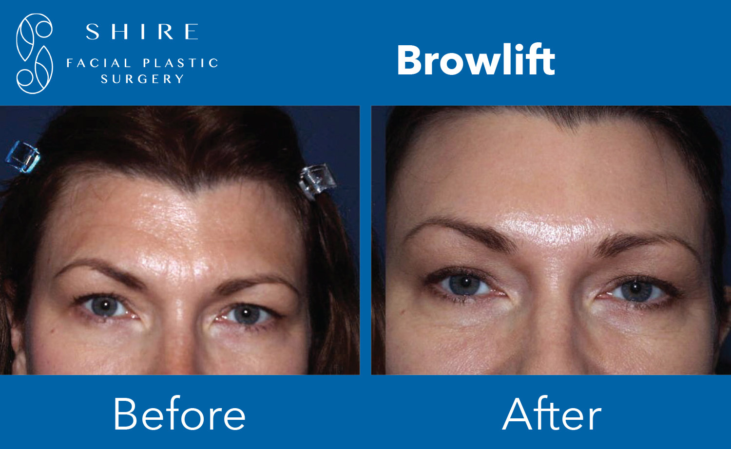 Browlift-Before-After-Group-5