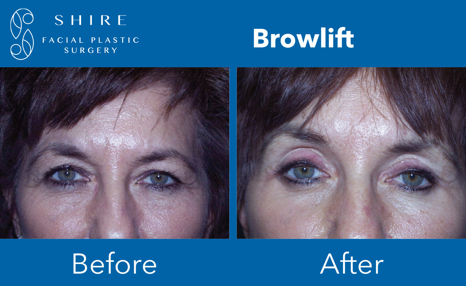 Browlift-Before-After-Group-7