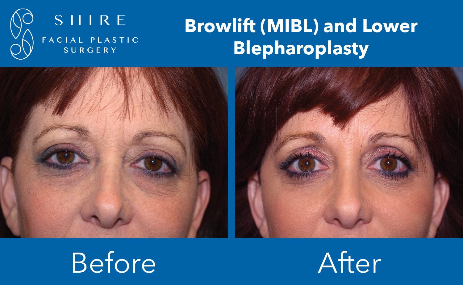 Browlift-Before-After-Group-9
