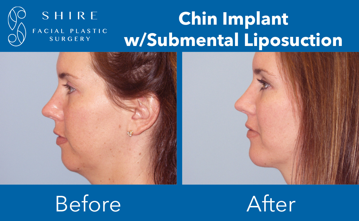 Chin-Implants-Before-After-Group-1