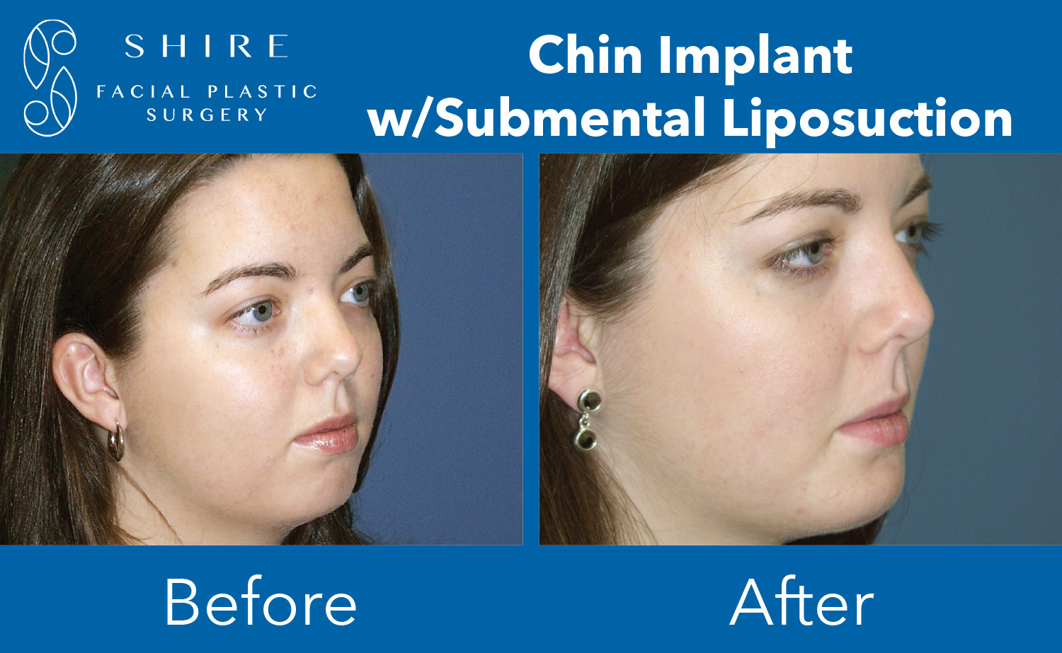 Chin-Implants-Before-After-Group-2