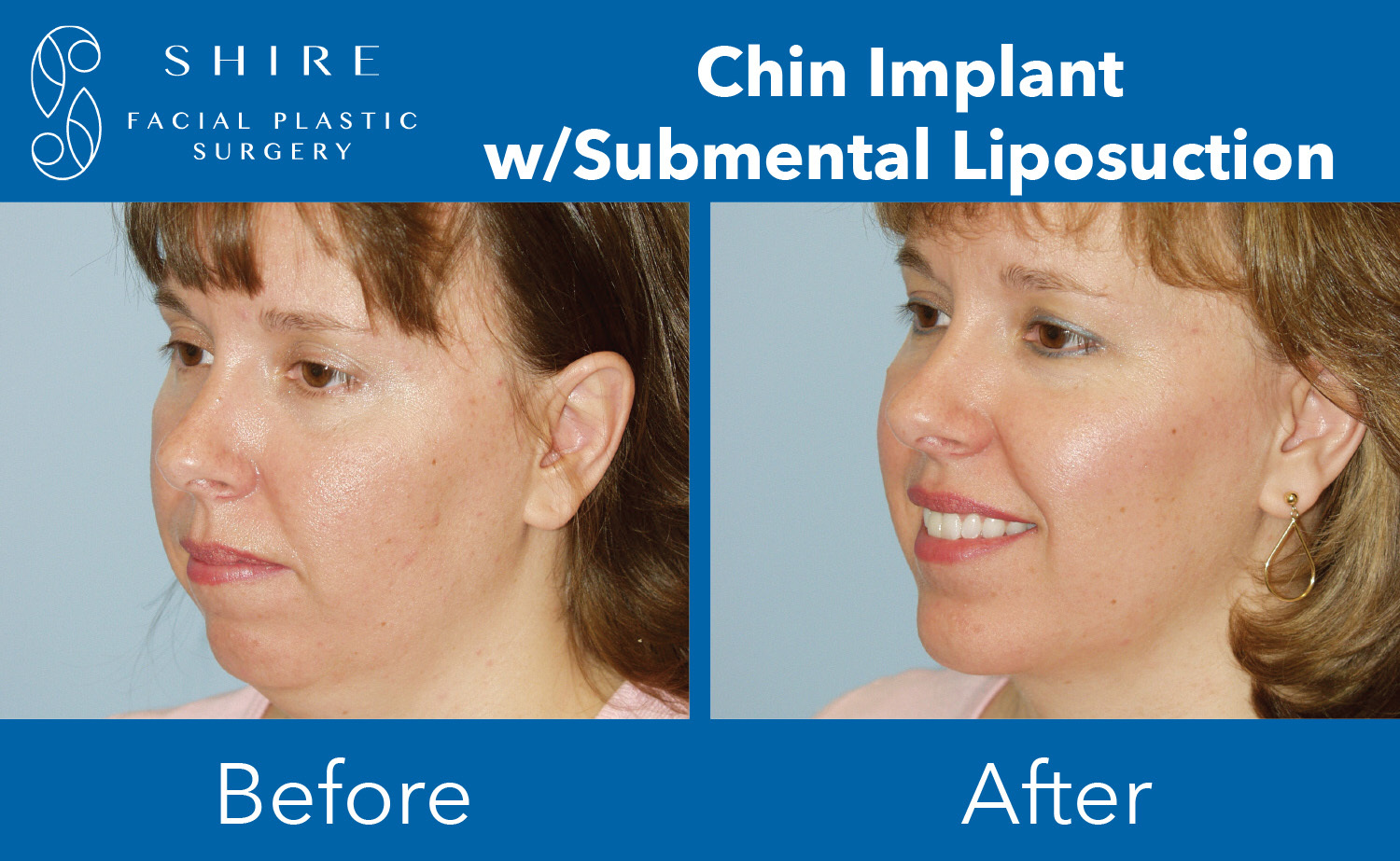 Chin-Implants-Before-After-Group-3