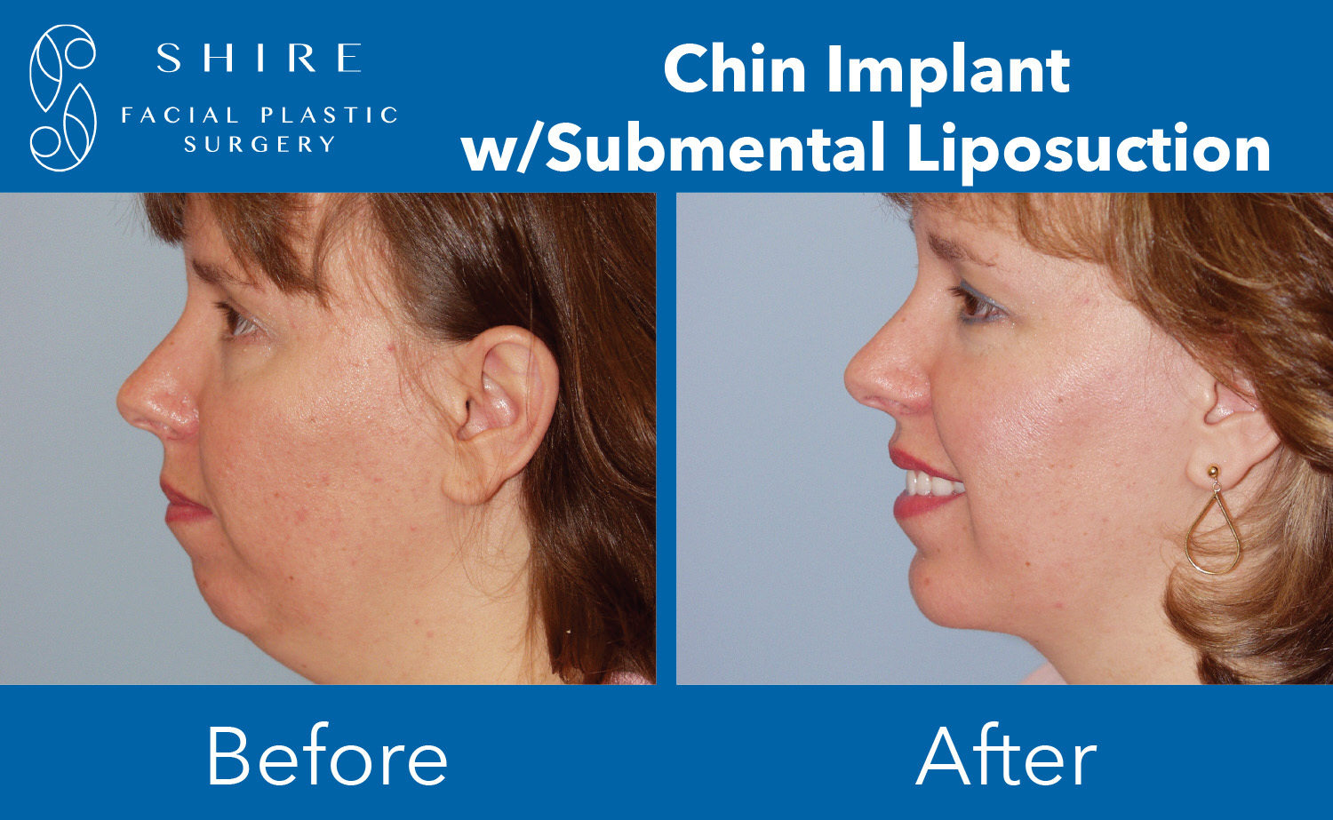 Chin-Implants-Before-After-Group-4