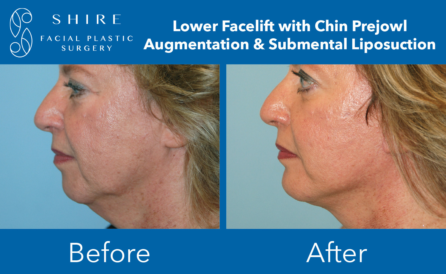 Chin-Implants-Before-After-Group-7