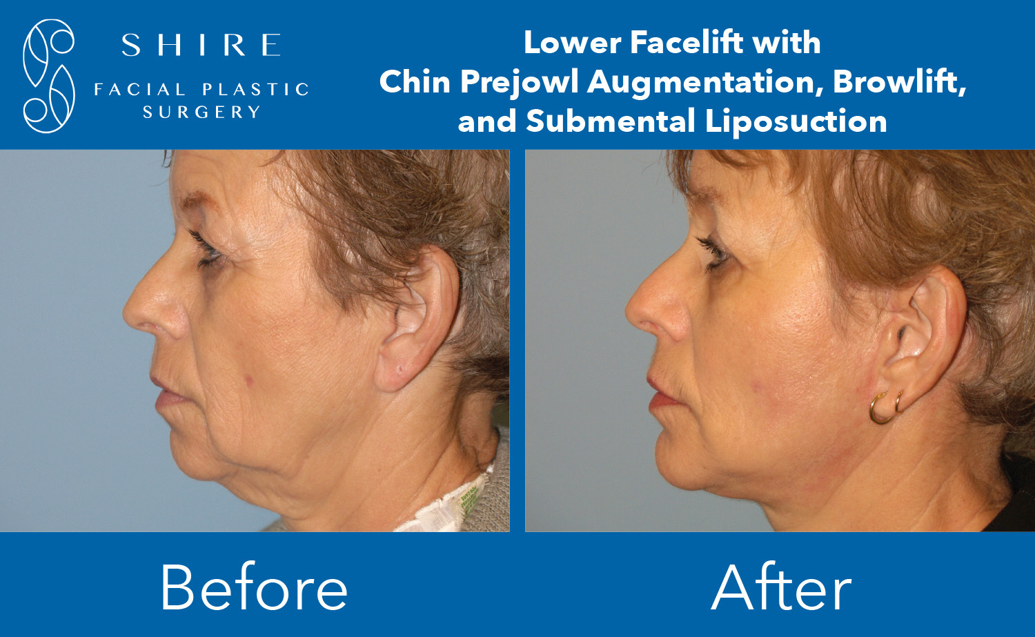 Chin-Implants-Before-After-Group-8