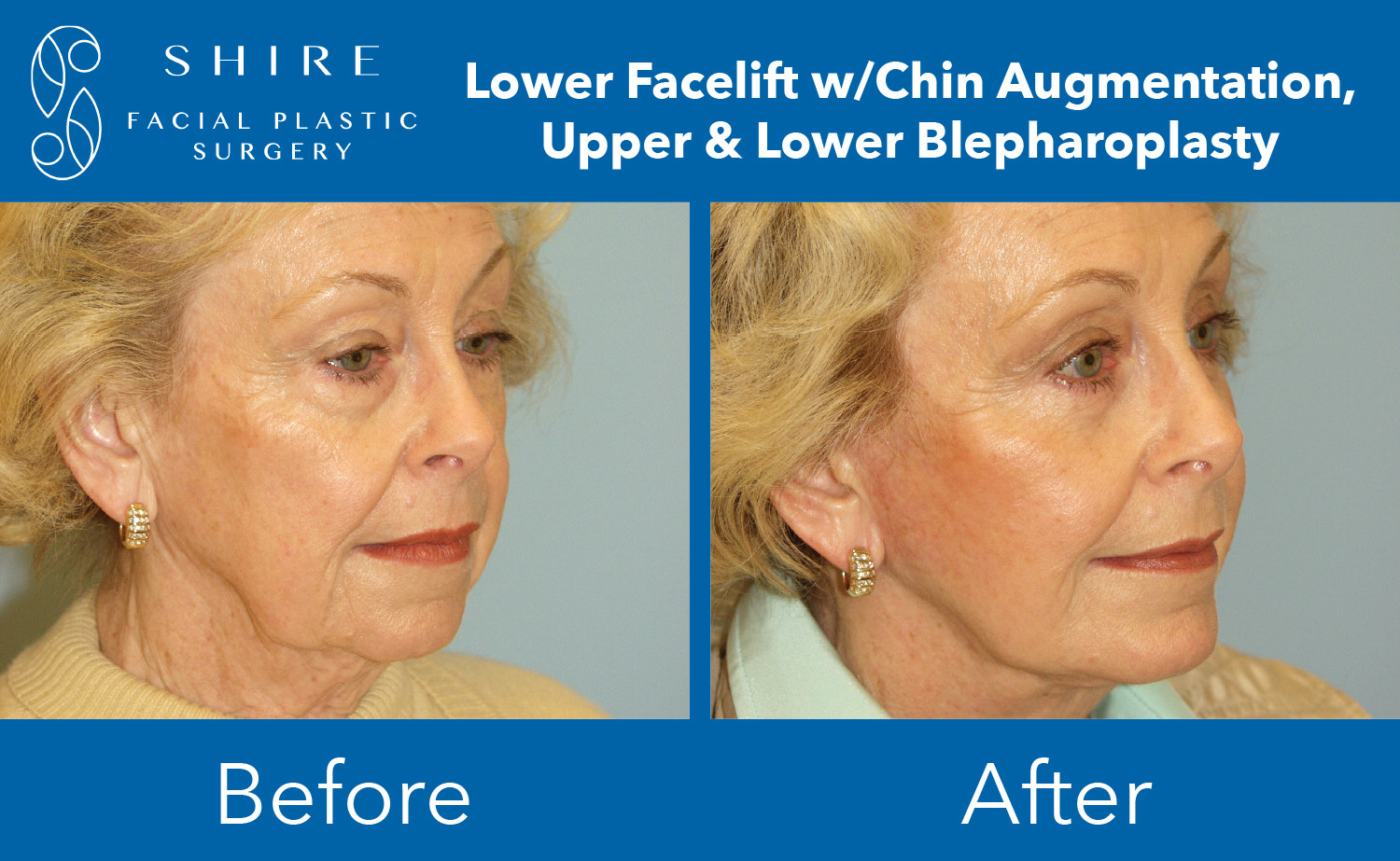 Facelift-Before-After-Group-1