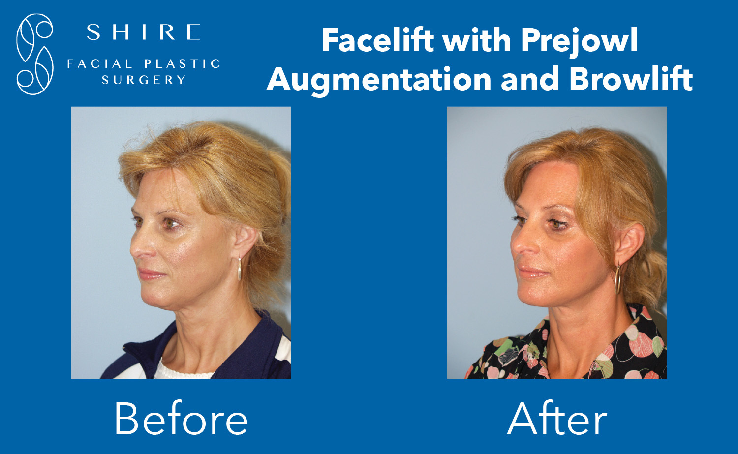 Facelift-Before-After-Group-10