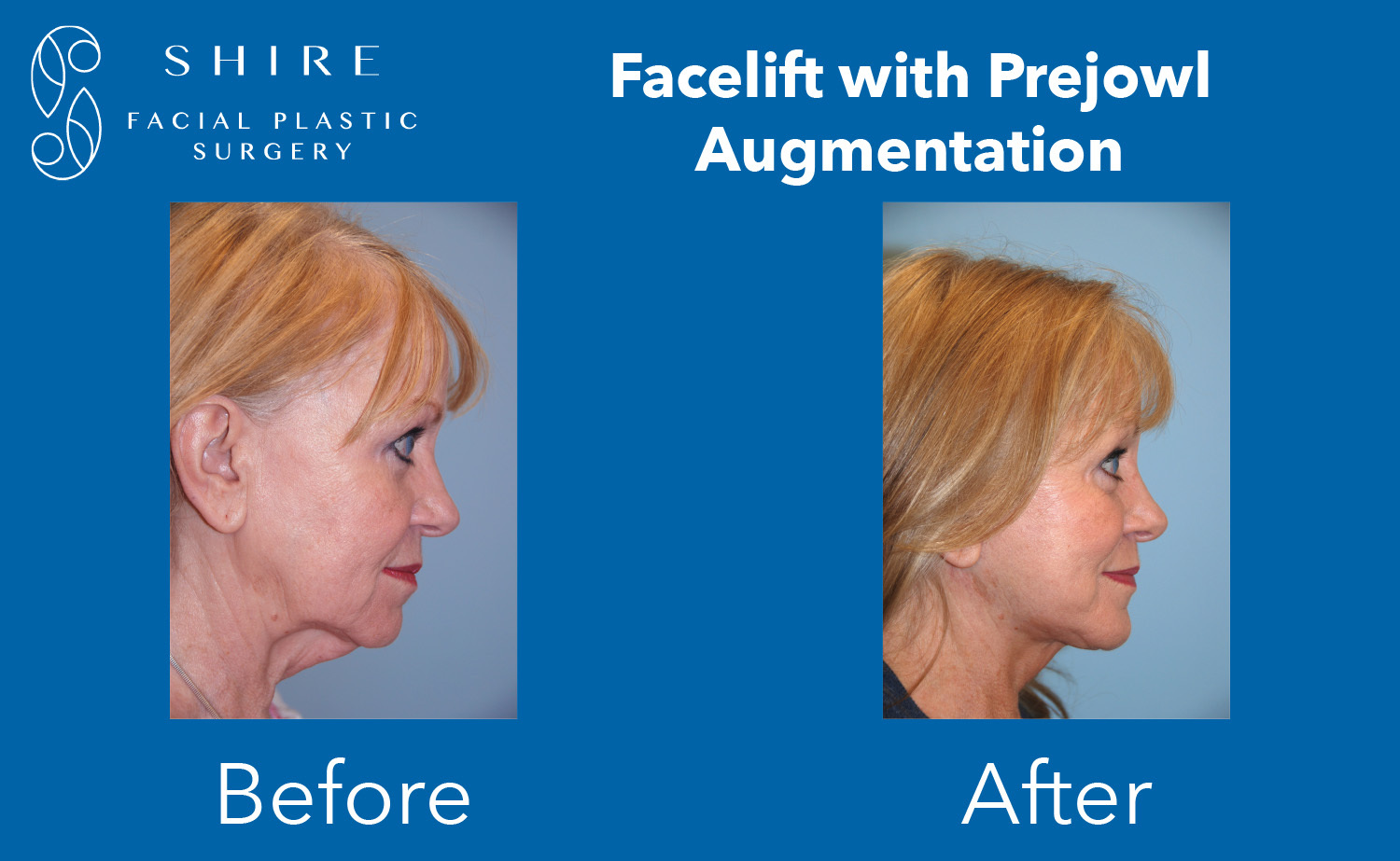 Facelift-Before-After-Group-11