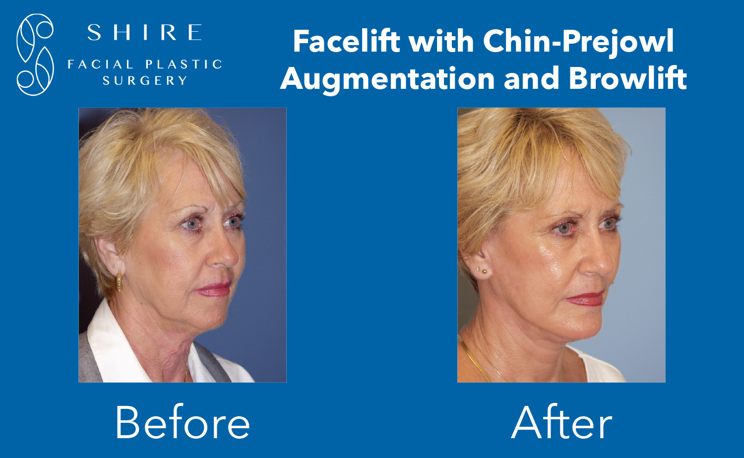 Facelift-Before-After-Group-12