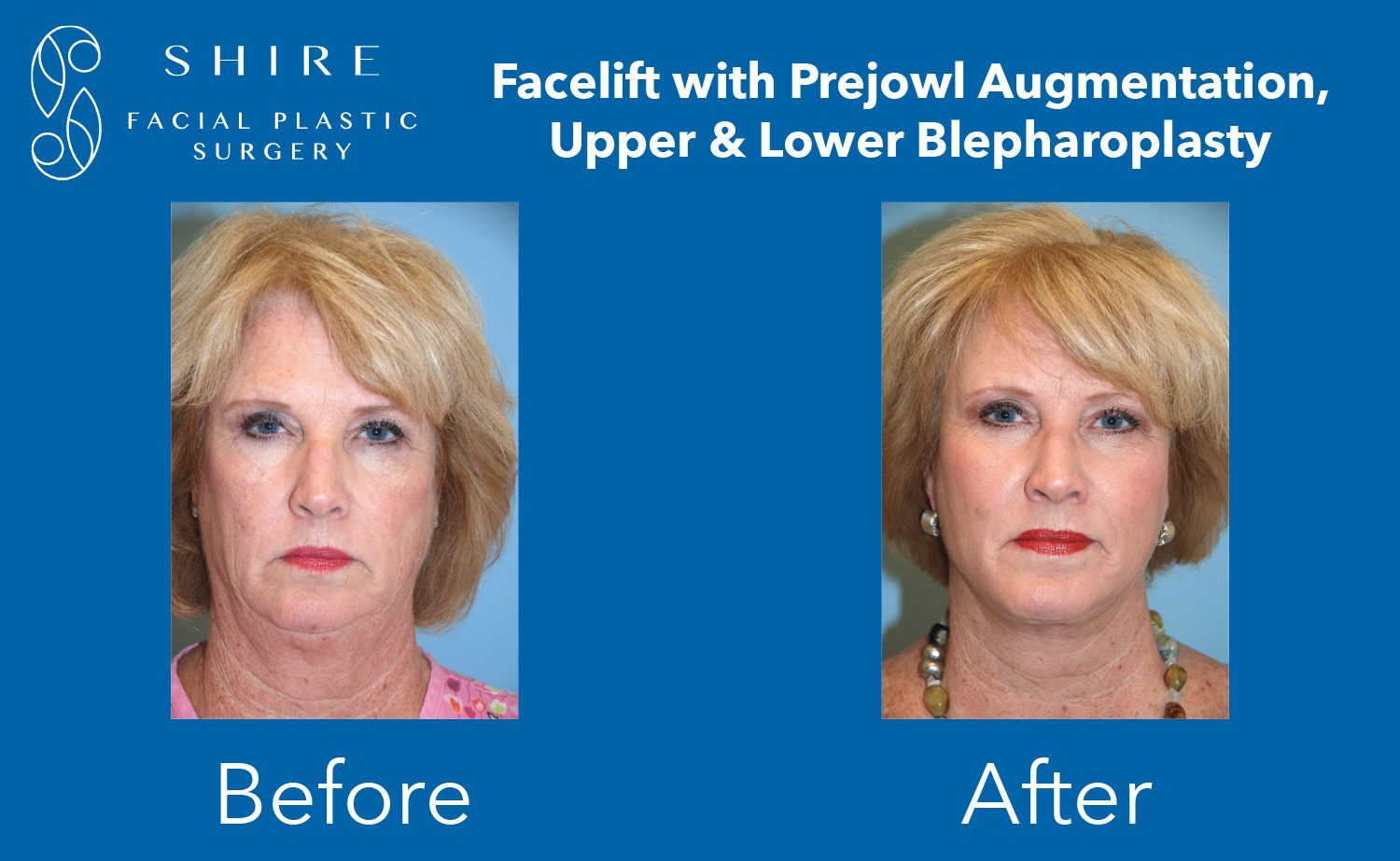 Facelift-Before-After-Group-13