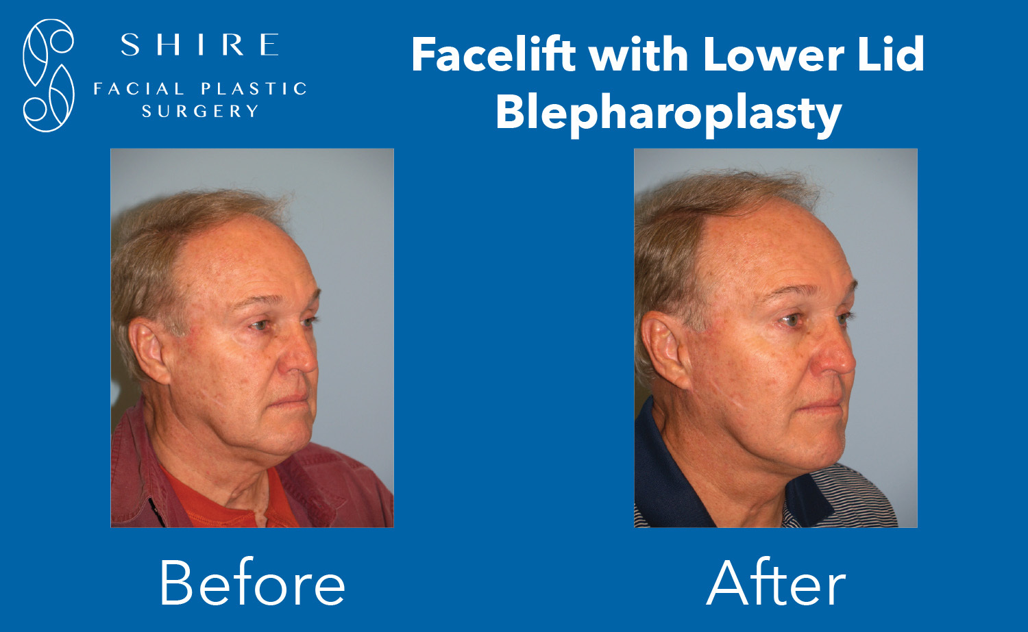 Facelift-Before-After-Group-15