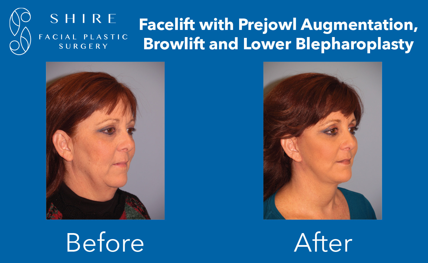 Facelift-Before-After-Group-16