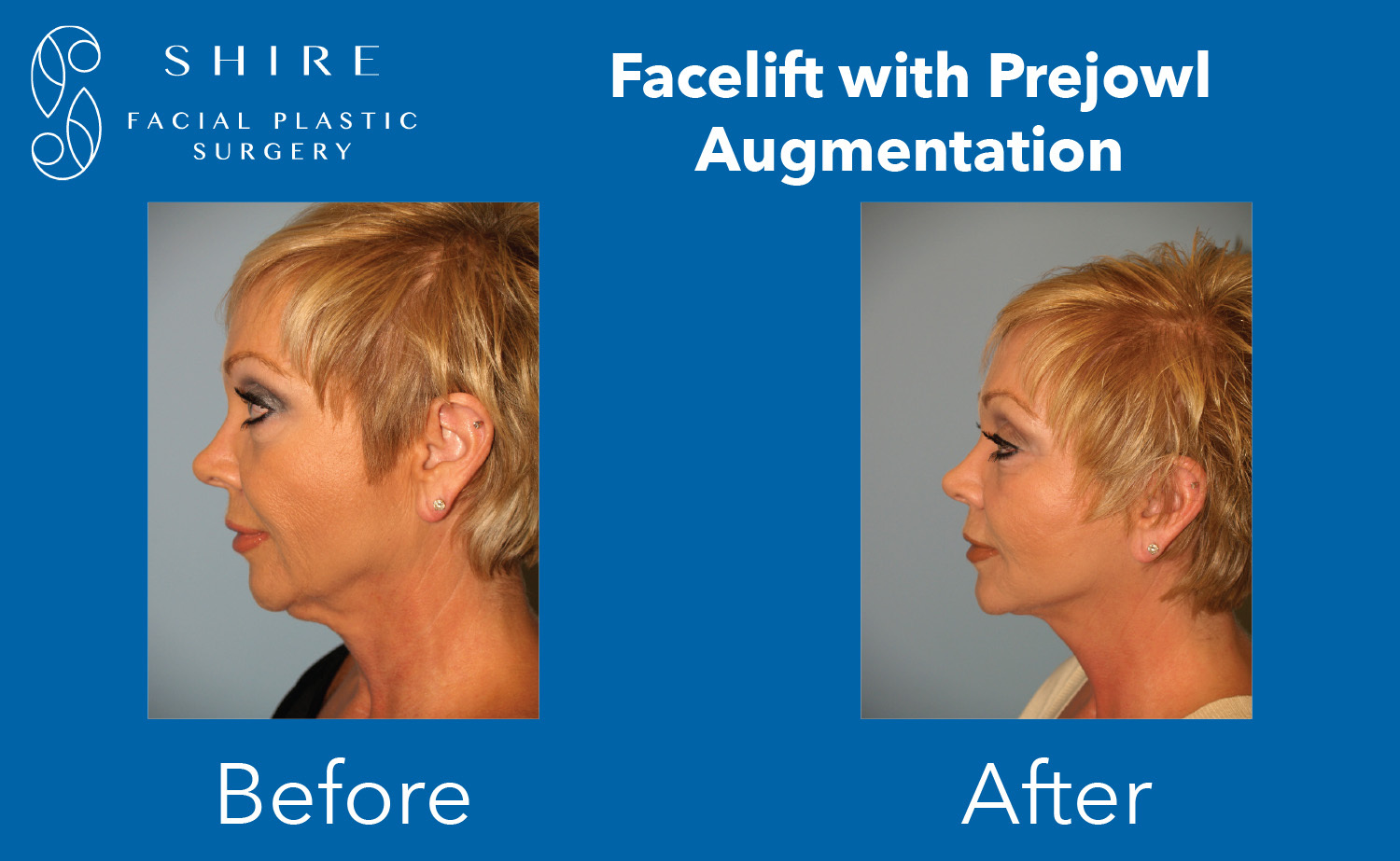 Facelift-Before-After-Group-17